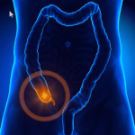 Appendix Linked To Toxic Parkinson's Protein - Veterans Today | News