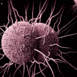 New Antibiotic to Treat Gonorrhea Advances in Trials - Veterans Today | News
