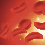 New Hope For Those With Sickle Cell Disease - Veterans Today | News